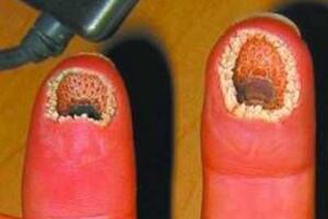 超噁心的手指圖片:空手指(手上全是洞密集症慎入)